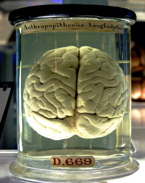 brain in jar.jpg