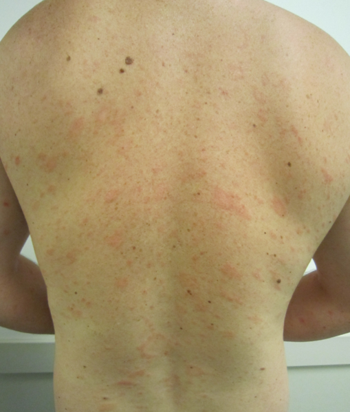 Pityriasis Rosea: What causes it?