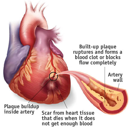 a description of the heart and its diseases Lack of exercise also is associated with many forms of heart disease and some of its other risk factors, as well stress.