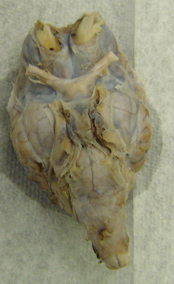 Sheep brain anatomy ventral - photo#16