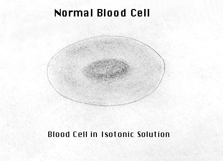 Red Blood Cells At Diffe Osmomolarity In Water Solutions